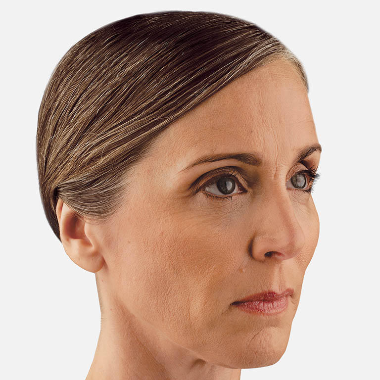 JUVÉDERM -VOLUMA-non-surgical facelift