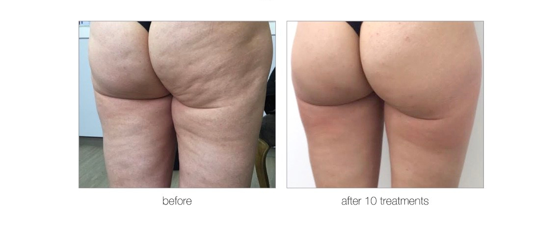 get-rid-of-cellulite